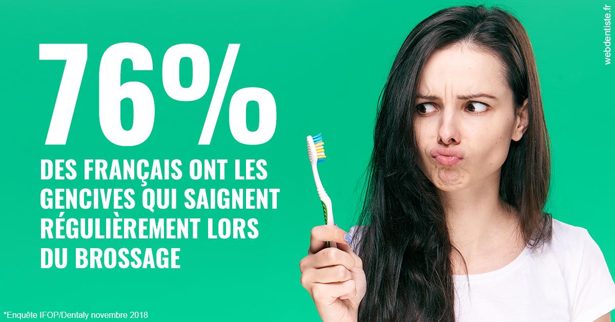 https://dr-hueber-veronique.chirurgiens-dentistes.fr/76% des Français 1